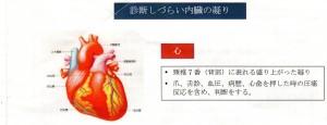 img156 300x115 - 内臓テクニック、心臓のこり